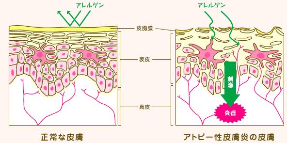 アトピー性皮膚炎の皮膚と正常な皮膚の違い